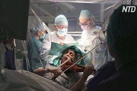 Під час операції на головному мозку пацієнтка грала на скрипці