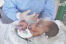 Дві хворі на коронавірус перуанки народили здорових малюків