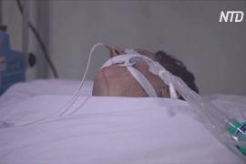 Учені в США: у третини пацієнтів із COVID-19 була ниркова недостатність