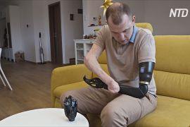 Інженер без кінцівок намагається створити «розумні» протези