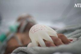 «Дотик любові»: як рукавички з теплою водою допомагають пацієнтам із COVID-19
