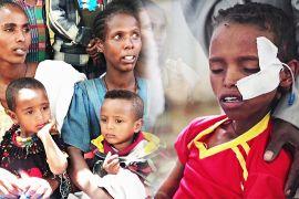 ООН: 100 000 дітей можуть померти від голоду в ефіопському регіоні Тиграй