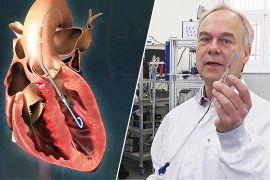 Найменшу у світі кардіопомпу створили в Німеччині